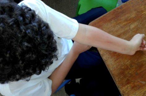 50 estudiantes de escuela en La Chorrera presentaron rara reacción alérgica