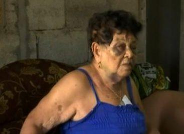 Denunciaron a sujeto que agredió brutalmente a señora de 88 años en Chiriquí