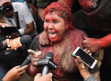 CIDH otorgó medidas cautelares a alcaldesa agredida en Bolivia