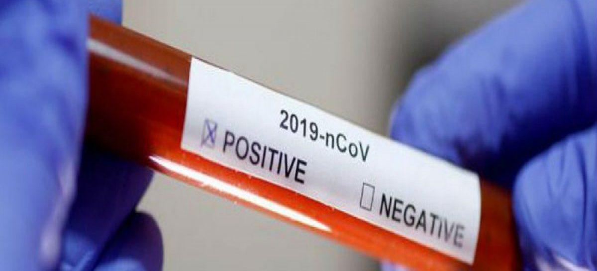 Ascienden a 137 los casos de coronavirus en Panamá