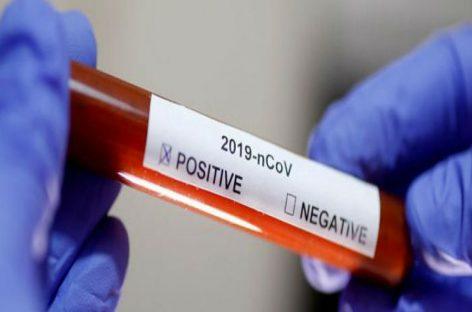 Cifra de muertes por coronavirus asciende a 59
